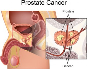 Prostatakrebs – Prostatakarzinom