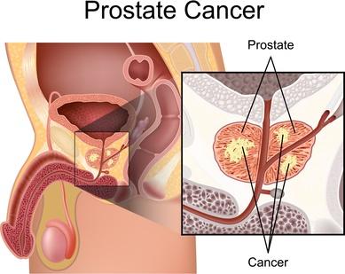Prostatakrebs wird durch den Urologen behandelt